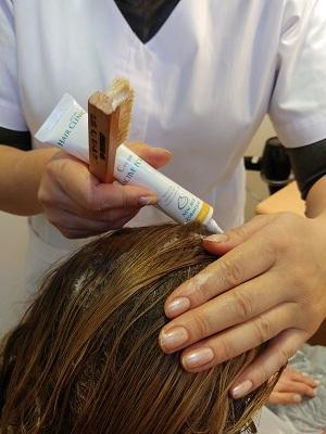 טיפול בנשירת שיער